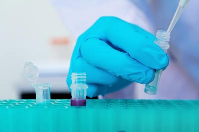 DSM signs agreement with Tunitas Therapeutics to develop asthma treatment in Australian plant
