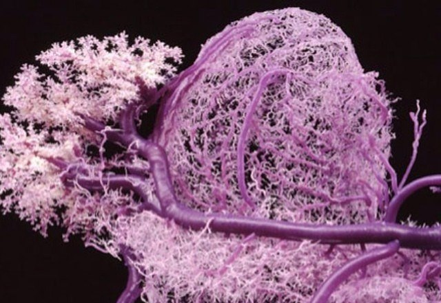 Bio-printing reaches new milestone with 3D printed blood vessels